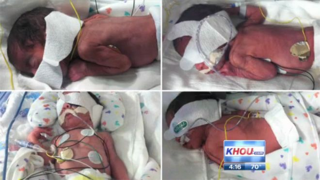Two-Sets-of-Twins_KHOU-in-Houston