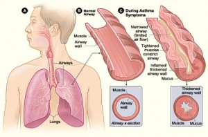 lung-system
